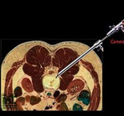Cirurgia Endoscópica de Coluna